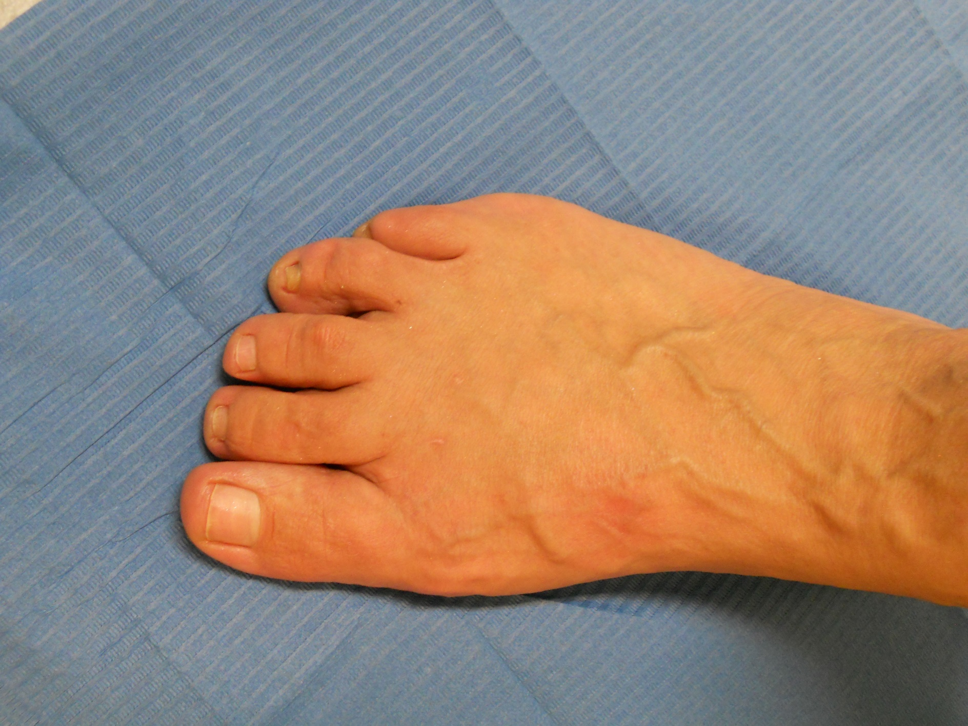 Hallux Valgus: after