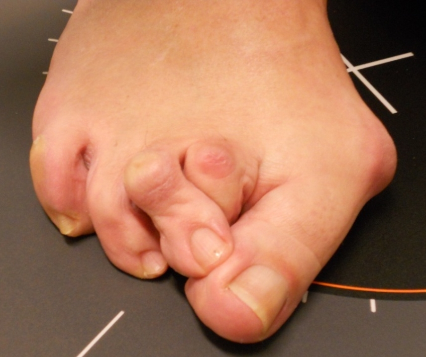 Hallux Valgus (bunion) and hammertoes : before