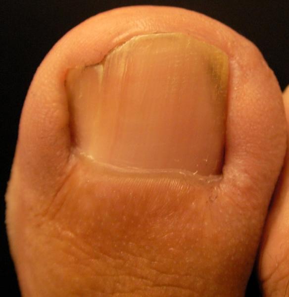 Pod 243 Logos En Madrid Podolog 237 A Madrid Podocen Foot Surgery