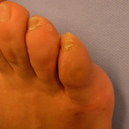 Dorsal callus (exostosis) in the fifth toe